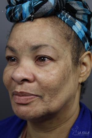 Chemical Peel: Patient 3 - Before