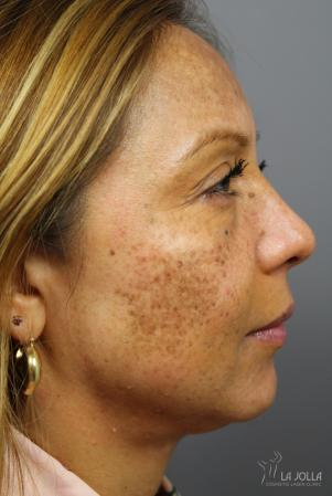 Skin Care Products: Patient 1 - Before
