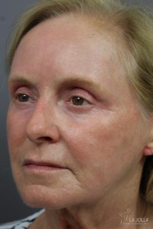 CO2 Laser: Patient 6 - After