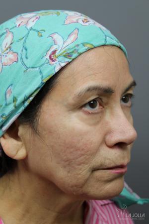 StarWalker® Laser: Patient 10 - Before