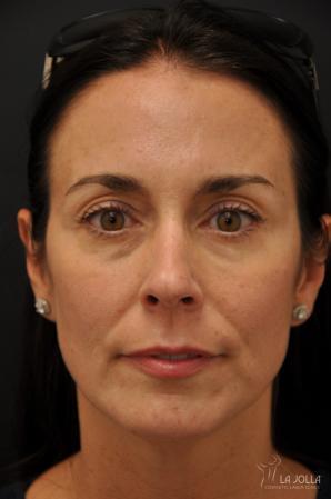 Under Eye Filler: Patient 5 - After