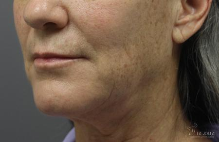 Ultherapy®: Patient 5 - After