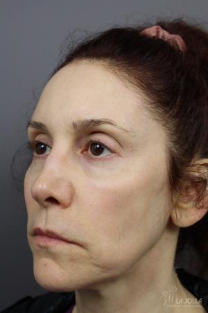 Liquid Facelift: Patient 2 - After