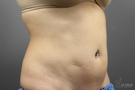 CoolSculpting®: Patient 2 - Before