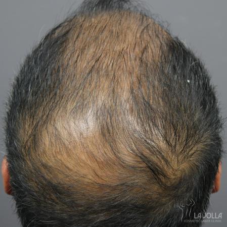 Hair Restoration: Patient 6 - Before