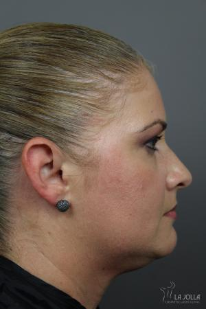Kybella: Patient 3 - After