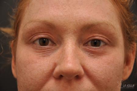 Under Eye Filler: Patient 3 - Before