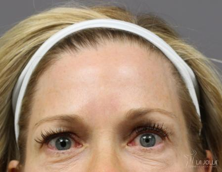 BOTOX® Cosmetic: Patient 4 - After