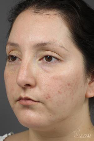 Acne Rejuvenation: Patient 7 - After