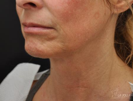 Ultherapy®: Patient 4 - Before