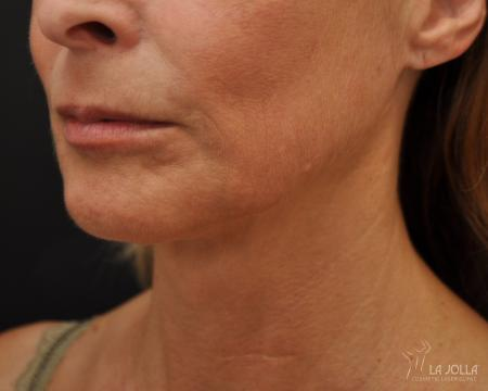 Ultherapy®: Patient 4 - After