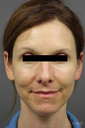 Acne Rejuvenation: Patient 4 - After