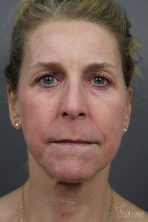 CO2 Laser: Patient 7 - After