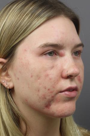 Acne Rejuvenation: Patient 5 - Before