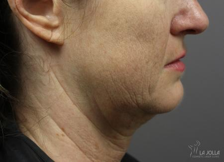 Kybella: Patient 7 - Before