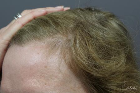 Hair Restoration: Patient 1 - After