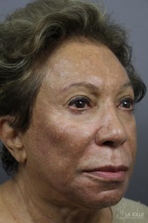 Chemical Peel: Patient 4 - Before