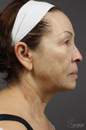 Fraxel®: Patient 6 - Before