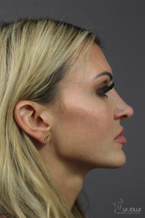 Non-Surgical Nose Job: Patient 1 - Before