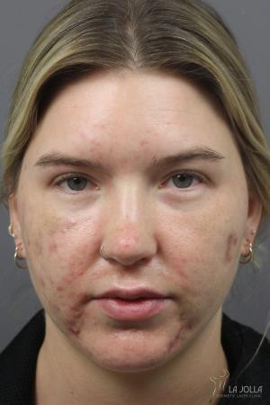 Acne Rejuvenation: Patient 8 - Before