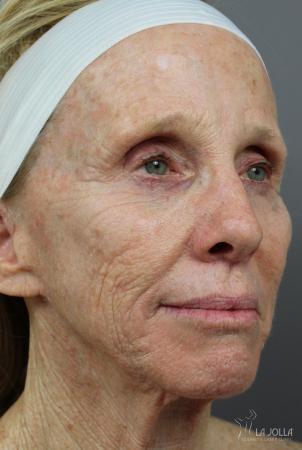 CO2 Laser: Patient 4 - Before