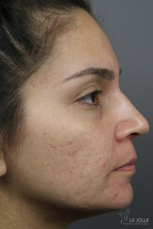 Acne Scars: Patient 2 - Before