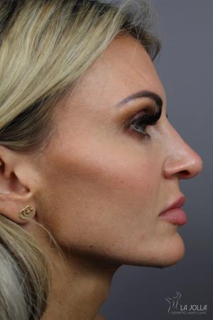 Non-Surgical Nose Job: Patient 1 - After