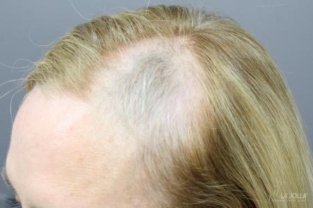 Hair Restoration: Patient 1 - Before