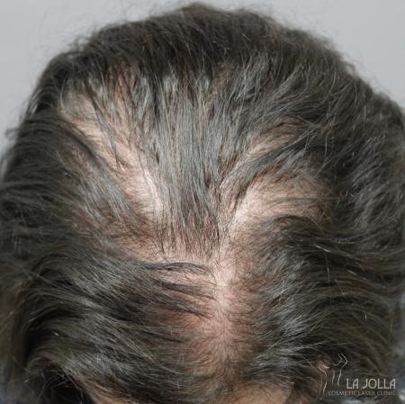 Hair Restoration: Patient 4 - Before