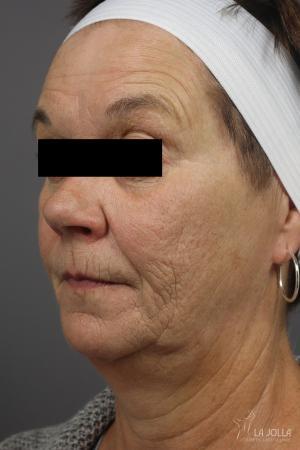 Restylane®: Patient 2 - Before