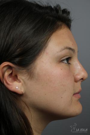 Non-Surgical Nose Job: Patient 5 - After