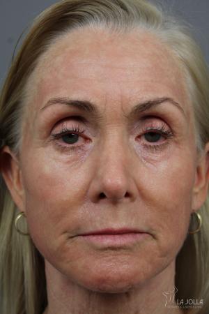 Laser Skin Resurfacing: Patient 1 - After