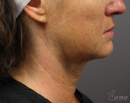 Kybella: Patient 7 - After