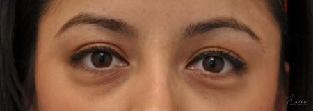 Under Eye Filler: Patient 4 - Before