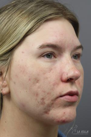StarWalker® Laser: Patient 9 - Before
