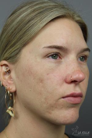 Acne Rejuvenation: Patient 5 - After
