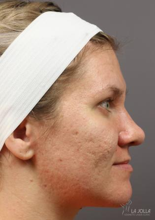 Acne Scars: Patient 7 - Before