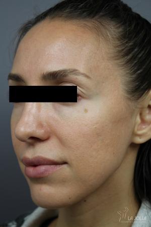 Under Eye Filler: Patient 1 - After