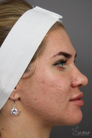 Acne Scars: Patient 7 - After