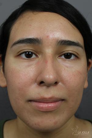 Acne Rejuvenation: Patient 6 - After