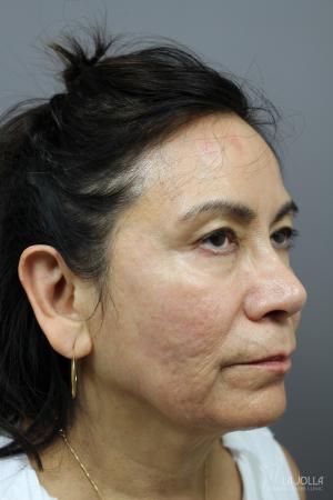 StarWalker® Laser: Patient 10 - After