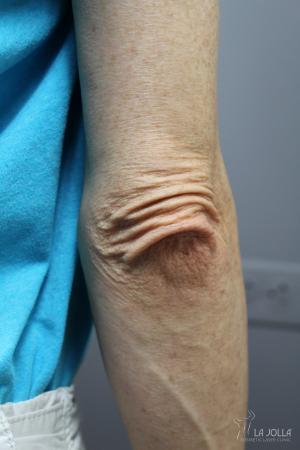 StarWalker® Laser: Patient 6 - Before