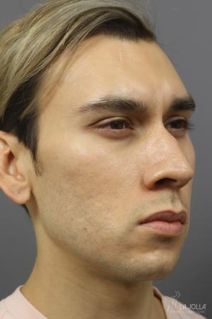 Acne Scars: Patient 6 - After