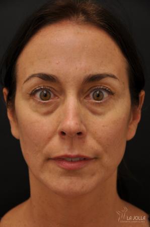 Under Eye Filler: Patient 5 - Before