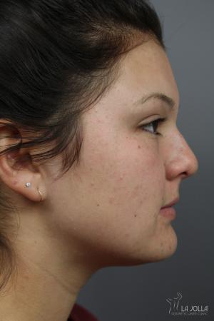 Non-Surgical Nose Job: Patient 5 - Before