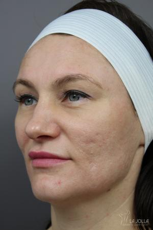 Acne Scars: Patient 4 - After