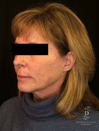 Digenis Refresh Lift: Patient 3 - After Image 4_2