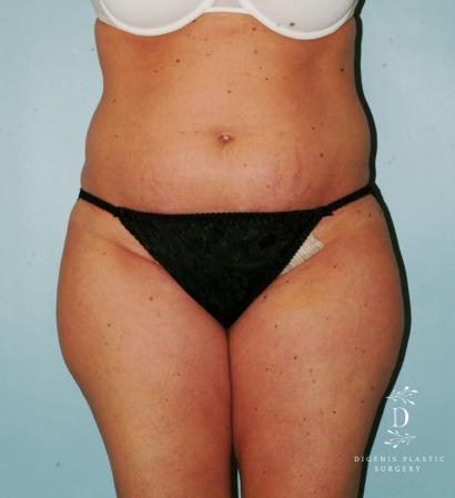 Liposuction: Patient 7 - Before Image 1