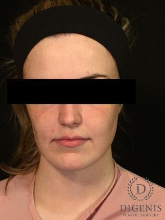 Digenis Refresh Lift: Patient 2 - Before Image