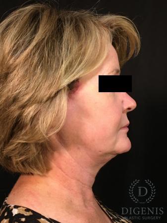 Digenis Refresh Lift: Patient 1 - After Image 3